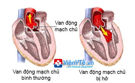 ho-van-dong-mach-chu